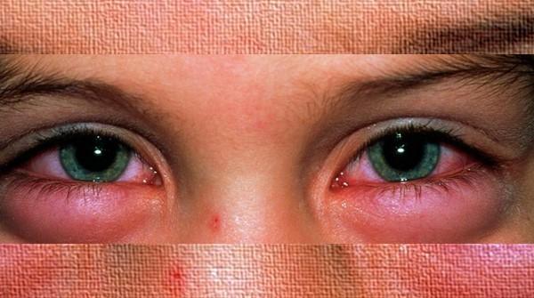 Kelopak mata bengkak dan merah