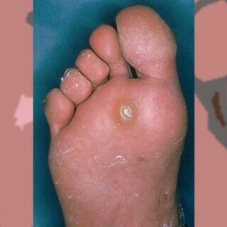 Gambar 1 - Mata ikan di telapak kaki