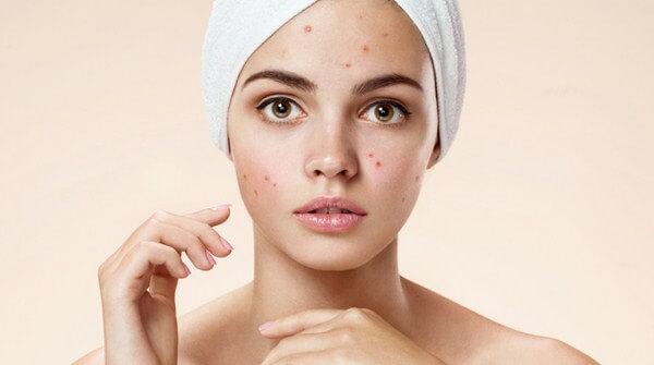 Manfaat kunyit untuk wajah dan badan
