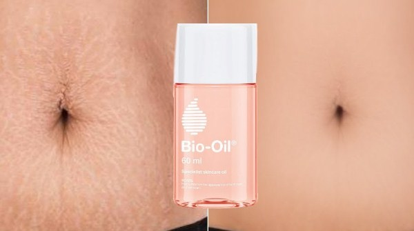 cara menggunakan bio oil pada strecthmark