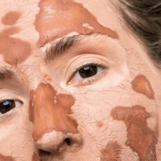 Gambar 1 - Bahan alami masker untuk kulit sensitif