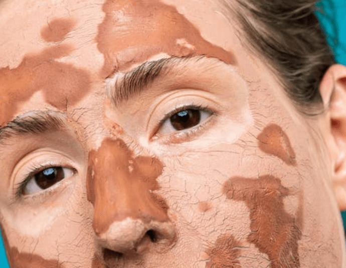 Bahan alami masker untuk kulit sensitif