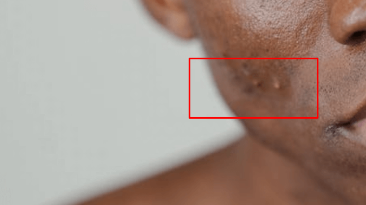 Gambar 1 - Penyebab jerawat gatal yang harus kamu tahu