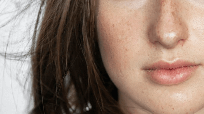 Cara menghilangkan jerawat tanpa mata