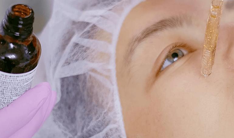 Cara perawatan wajah setelah peeling